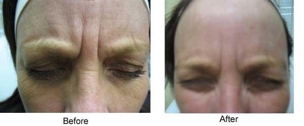 Botox glabella 4 months later residual