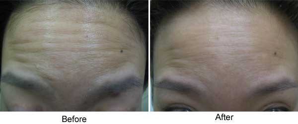 Botox – residual effect 6 months later