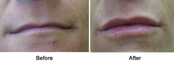 lips before filler, immediately after