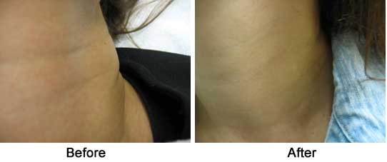 neck creases before filler and after
