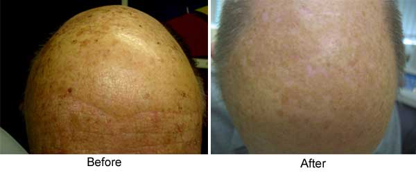 Photodynamic therapy (Levulan) with IPL top of head, one treatment