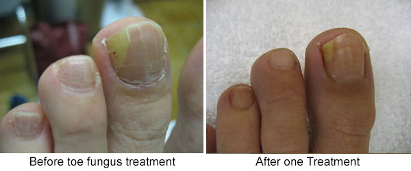 Before and After One Treatment