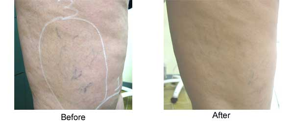 Veins before and after one treatment