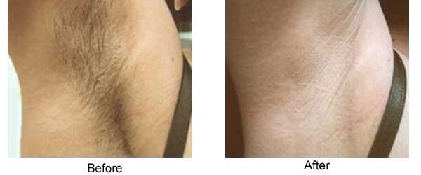 Underarm hair removal
